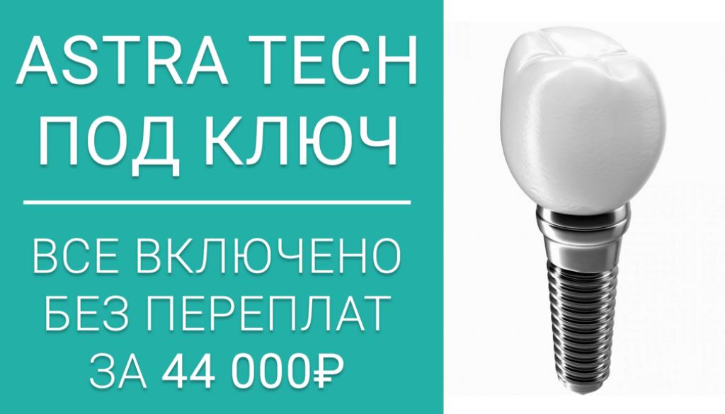 Имплантация Astra Tech под ключ за 44000 р.! Без скрытых платежей!